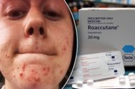 SA Acne Treatment Can Cause Aggressiveness