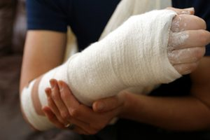 Worker's Arms Broken Accident At University
