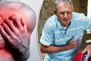 Painkillers heart attack risk