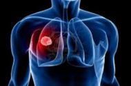 FIRST BLOOD TEST FOR MESOTHELIOMA IS ANNOUNCED BUT, WHO GETS CREDIT FOR IT?