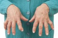 LINK FOUND BETWEEN RHEUMATOID ARTHRITIS (RA) AND CORONARY ARTERY DISEASE (CAD)
