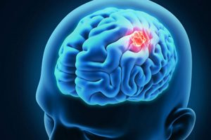 Chemical Company brain cancer risk