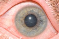 More Cases of Eye Fungus Reported