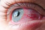 Eye infections in state lead to investigation