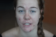 Link between acne treatment and depression
