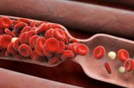Boston Scientific confirms risk of blood clots in drug-coated stents