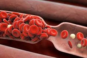 blood clots in Drug-Coated Stents