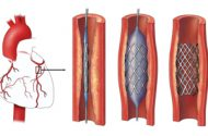 FDA Probes Safety of Popular Heart Stent