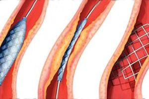Warning On Stents
