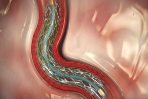 Bypass More Effective than Drug Coated Stents For Clogged Arteries