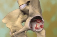 Stryker Trident Hip Implant Component Recall Latest Bad News
