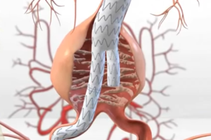 Medtronic AneuRx Stent Graft High Death Rate Prompts FDA Warning