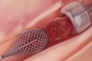 Heart Stents No Better than Drugs