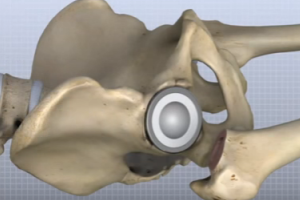 Lifespan and Success of Artificial Hip, Knee Implants Unpredictable