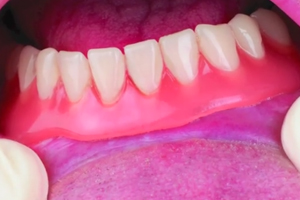 Poor Fitting Dentures, Denture Pain Linked to a Variety of Health Woes
