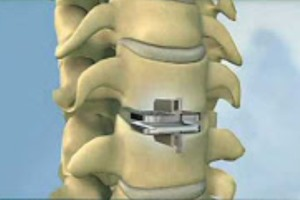 Synthes USA Vertebrae Replacement Implants