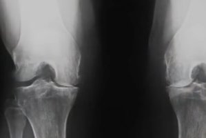 Lawsuit Claims Zimmer Knee Replacement Component is Defective