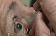 Infection Risk Prompts VA to Drop Avastin as Eye Treatment
