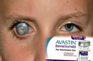 Avastin Eye Treatment Infections