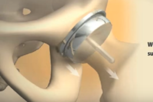 DePuy CEO Alex Gorsky Asked to Testify in ASR Hip Implant Lawsuits