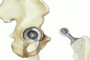DePuy ASR Hip Replacement Lawsuit Filed on Behalf of Patient