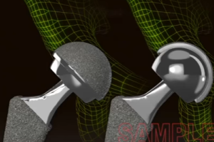 Metal-on-Metal Hip Implants