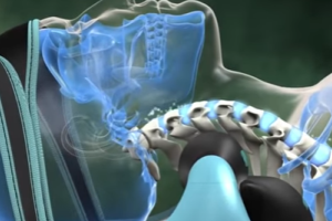 Mild Spinal Device Maker Trying to Suppress Negative Findings