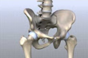 ASR Hip Implant