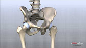 DePuy's Chief Exec Testifies on Knowledge of ASR Hip Implant During Trial's Fourth Day