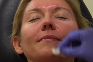 Topical Acne Medications Could Lead to Life-Threatening Allergic Reactions