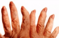 Study Finds High Rate of GI Events when NSAIDs are Used for Arthritis