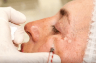 FDA: Injury Risk if Soft Tissue Filler Injected into Blood Vessel