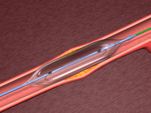 Balloon Angioplasty Devices
