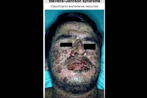 Stevens-Johnson Syndrome A Potential Side Effect of Tegretol Carbatrol Equetro