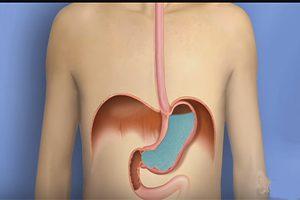 Heartburn Med
