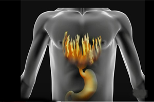 Popular Heartburn Medications Side Effects