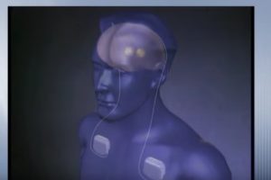 Brain Stimulation Devices