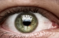 Acanthamoeba Keratitis Exposure Injury Lawsuits