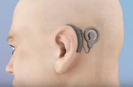 Advanced Bionics Cochlear Implants Lawsuits