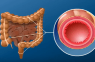 Ulcerative Colitis Disease Injury Lawsuits
