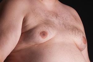 J&J Settles Risperdal Gynecomastia Lawsuit Before Trial