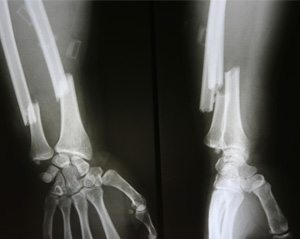 X-rays of broken bones, one of the side effects of Nexium use
