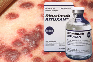 Rituxan Side Effects Lawsuits