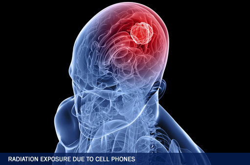 Radiation Exposure Due To Cell Phones Side Effects Could Lead To Brain Cancer Lawsuits