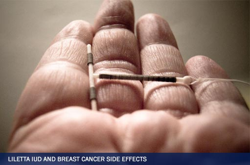 Personal Injury Lawsuit: Liletta IUD and Breast Cancer Side Effects