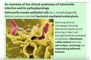 Salmonella Tennessee Confirmed in Johnson County