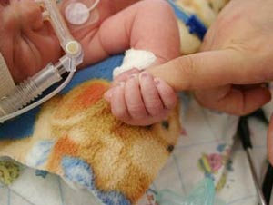 Birth Defects Injury Lawsuits