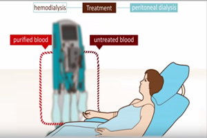 Dialysis, Kidney Transplant Patients Risk of NSF