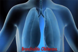 Fixed Obstructive Lung Disease Among Workers in the Flavor-Manufacturing Industry