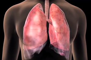 Food Additive Linked to Lung Cancer
